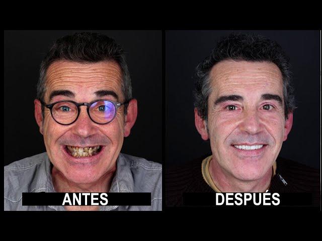 Estética Dental y prótesis cad-cam