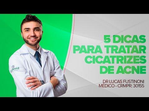 5 Dicas para tratar Cicatrizes de Acne |  Dr Lucas Fustinoni - Médico - CRMPR: 30155