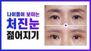 처진눈 꺼진눈 교정 될 수 있을까요? | 눈썹하거상 미…