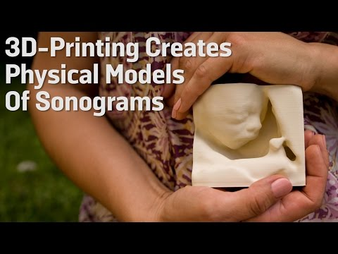 3D-Printing Creates Physical Models Of Sonograms