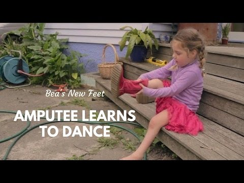 Young Amputee Wants to Dance