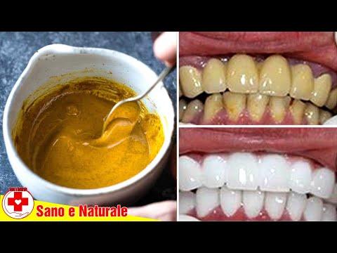 In 3 Minuti, I Denti Gialli Brilleranno Come Una Perla | Sbiancamento Dei Denti Con La Curcuma