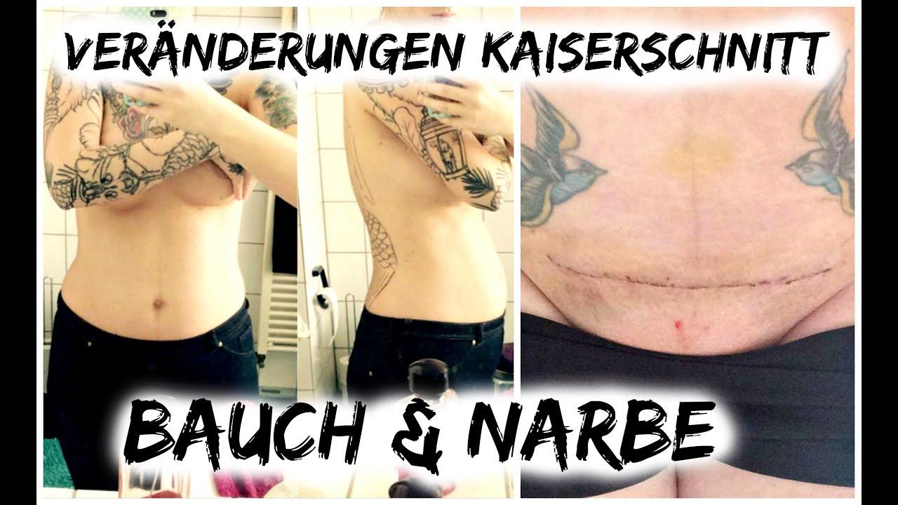 Behandeln narbe am bauch Narben entfernen: