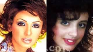 عمليات التجميل للفنانات قبل وبعد