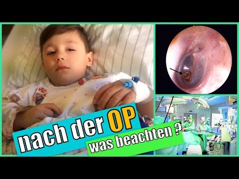 operation polypen bei kindern paukenr hrchen nach der op was ist zu beachten youtube. Black Bedroom Furniture Sets. Home Design Ideas