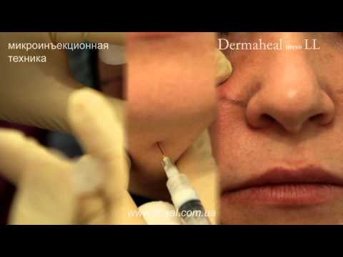 Процедура препаратом DERMAHEAL MESO LL в болюсной технике [ FloSal ]