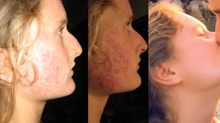MUST SEE! How I Cured Severe Acne & Hair Loss caused by Contraceptive Pill! SHOCKING! EstroBlock