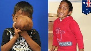 Австралийские врачи удалили нарост с лица филиппинского мальчика