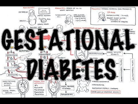 Gestational Diabetes - Overview (signs And Symptoms, Pathophysiology, Diagnosis, Treatment)