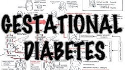 hqdefault - Revision Of Guidelines For The Management Of Gestational Diabetes Mellitus