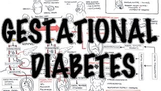 Gestational Diabetes – Overview (signs and symptoms, pathophysiology, diagnosis, treatment)