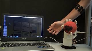 Multimodal Control of a New Prosthetic Hand Prototype: The PRISMA Hand I