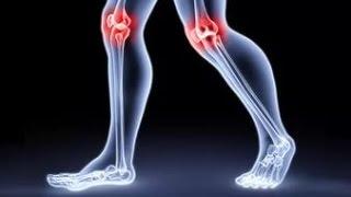 ОСТРО болят колени.Что  надо делать(ОСТРО болят колени.Что надо делать Мы поможем Вам: http://goo.gl/cH1Ulu Сильные боли в ногах, боли в сустава..., 2016-02-04T12:38:21.000Z)