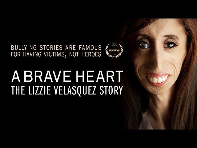 Lelijkste Vrouw Ter Wereld Slaat Terug Met Documentaire Nos