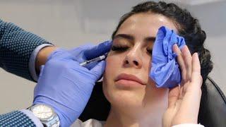 Angela Babicz Gets Botox and Filler with Dr. Madnani   Madnani Facial Plastics