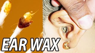 Largest Ear Wax Removal of 2018!  Ear Wax Removal Tools!