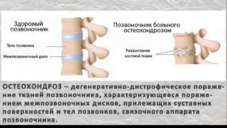 Пилатес для позвоночника Видео оздоровление Упражнения(Пилатес для позвоночника Видео оздоровление Упражнения., 2015-06-16T04:40:44.000Z)