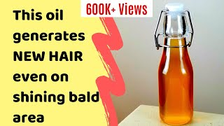 Specially made DHT blocker hair oil, Best DIY hair oil to reverse hair loss, promote new hair growth