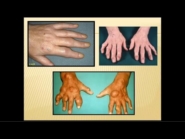 A Case of Inflammatory Arthritis