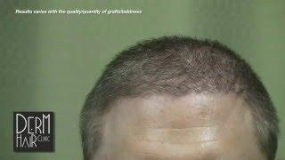 Body hair transplant - My Severe Baldness Cured