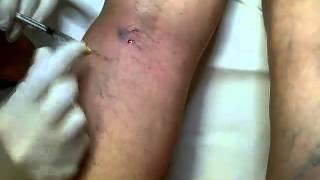 Szkleroterápia(, 2015-02-28T18:54:38.000Z)