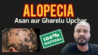 ALOPECIA KA ASAN GHARELU UPCHAR