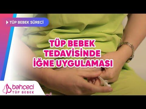 Tüp Bebek Tedavisinde İğne Uygulaması