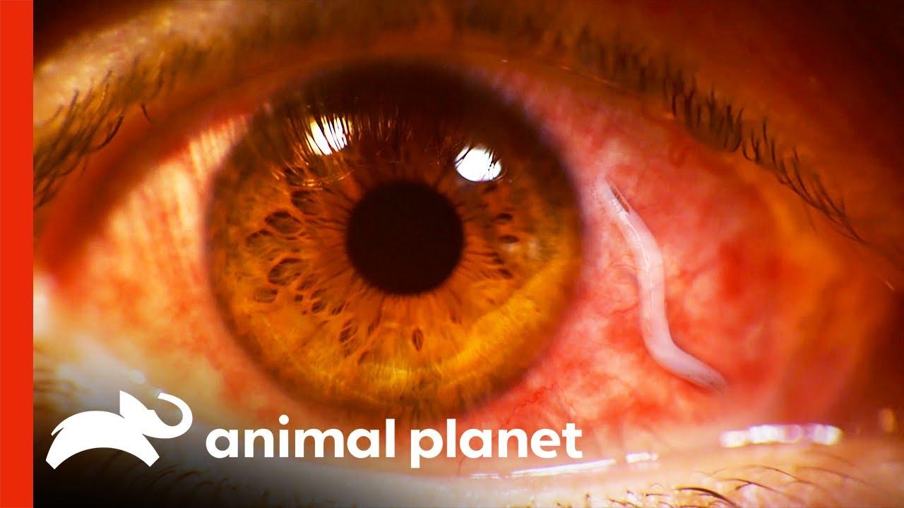 Download Doctors Remove Huge Parasite From Eyeball  | Monsters Inside Me