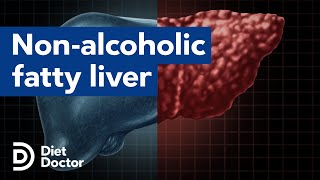 NAFLD and what we can do about it