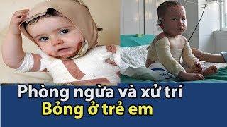 Phòng ngừa và điều trị bỏng ở trẻ em