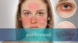 Rosacea And Stress