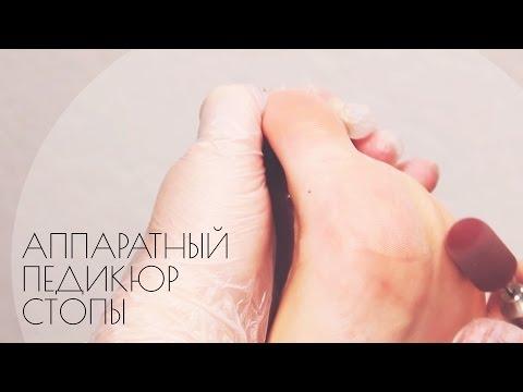 Аппаратный педикюр стопы