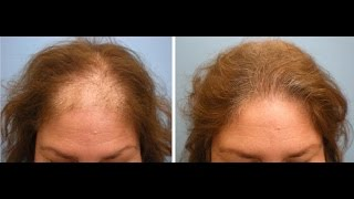 Hair Regrowth for Women Naturally