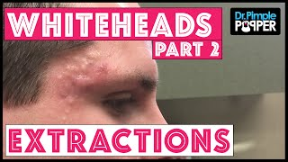 Whitehead Extractions in an Acne Patient, Part 2