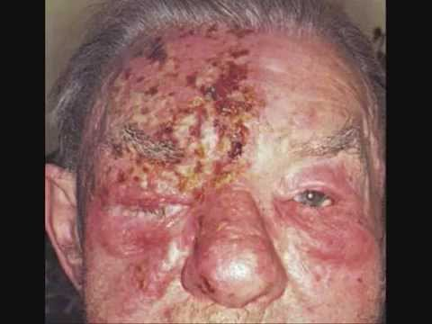 How to Treat Shingles, New Shingles Treatment!  Herpes Zoster treatment Cures shingle in 3 days