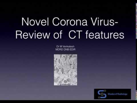 N Corona Virus 2019- COVID CT Features