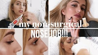 NON-SURGICAL NOSE JOB???