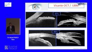 SFO 2017 – UBM et angle iridocornéen dans le glaucome