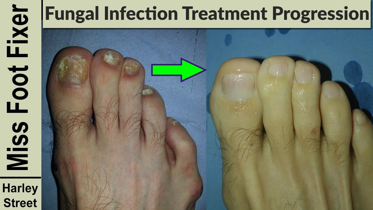 Nail Treatment Progression Photo Before And After By Fungal Nail Expert Youtube