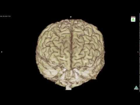 Variation of brain cortex 3D MRI sample F,]ot