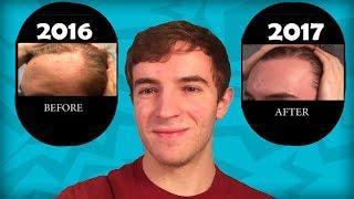 Coconut Oil + Castor Oil Hair Regrowth   YEAR 1