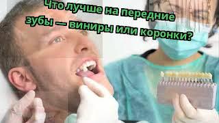 Что лучше на передние зубы — виниры или коронки?