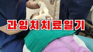 과잉치 치료 일기, 치과진료, 어린이치과, 소아치과, …