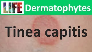 Scalp Ringworm (-A Tinea capitis Infection).