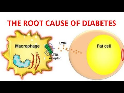 treat-the-root-cause-of-diabetes---how-to-treat-diabetes-naturally
