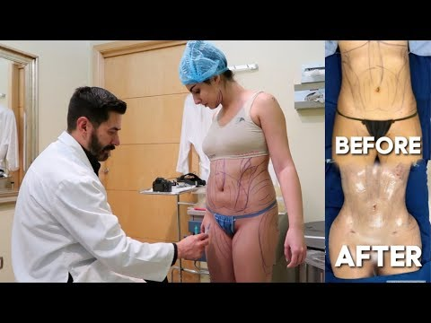 I got a Brazilian Butt Lift in MEXICO? Here&39;s what happened BBL journey