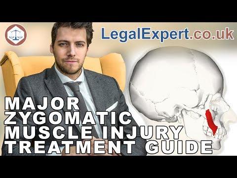 Major Zygomatic Muscle Injury Treatment Guide ( 2019 ) UK