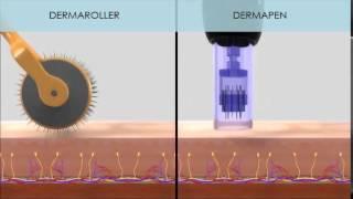 NUTRA SYSTEM  - DERMAPEN&DERMASTAMP (Fraksiyonel Mikro İğneleme Sistemleri)