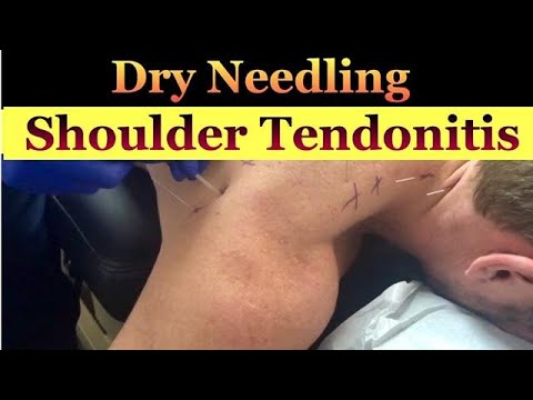 Dry Needling for Shoulder and Lower Neck Pain