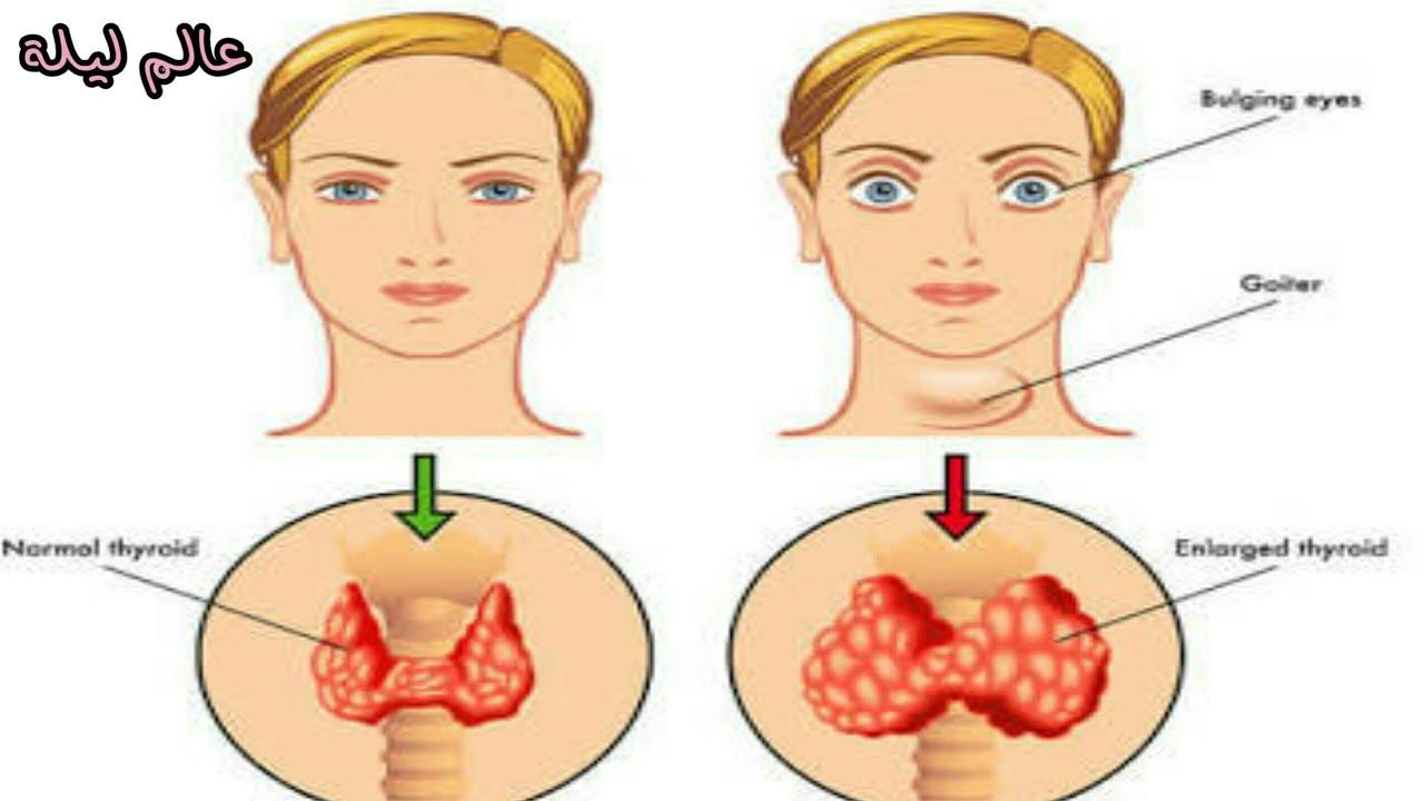 علاج الغدة الدرقية بالطب النبوي 11